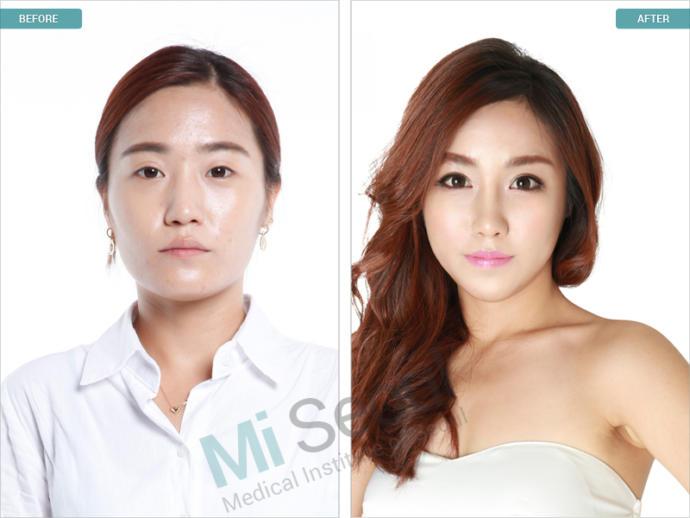 Nude Pix HQ Free korean sex drama