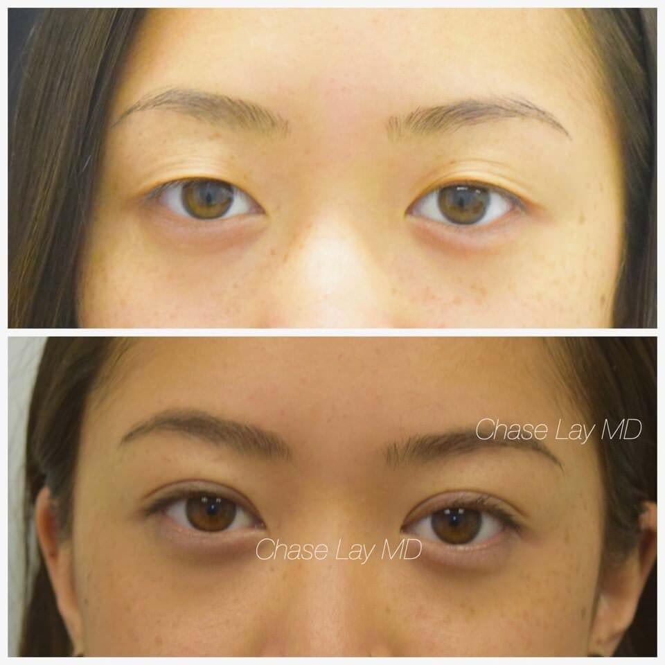 surgery eye Asian women